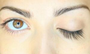 Growth of Eyelash